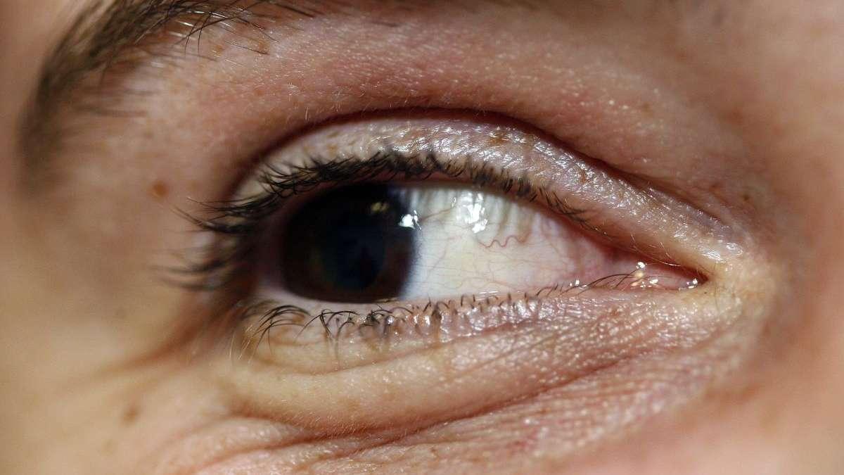 Bonn Augengrippe