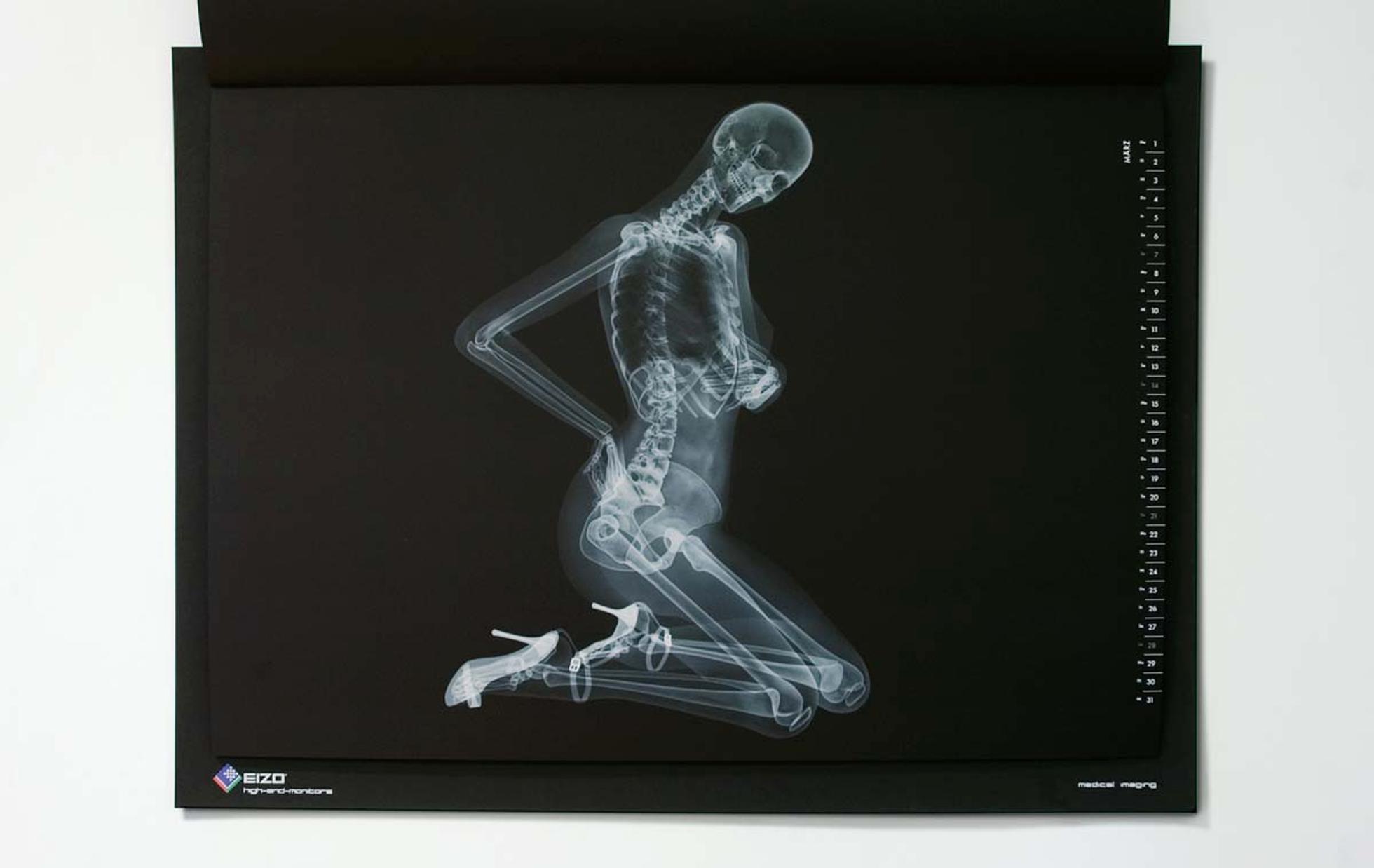 Фото рентген прикольные порно, порнуха рабочие дни порнозвезды