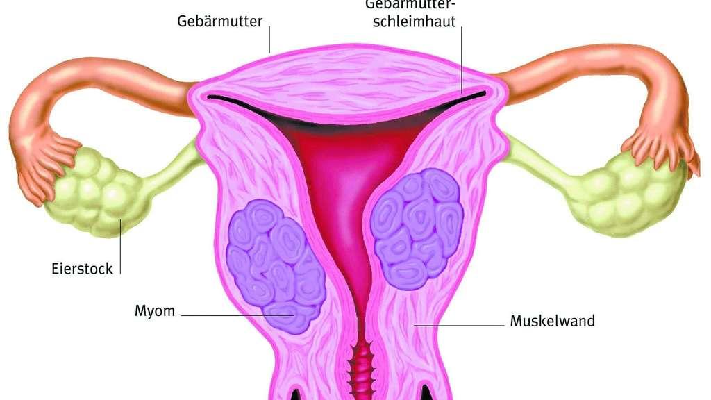 Sanfterer Weg der Gebärmutterentfernung   Gesundheit