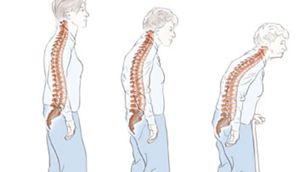 Osteoporose Stoffwechselerkrankung der Knochen Ursachen Vorbeugung ...