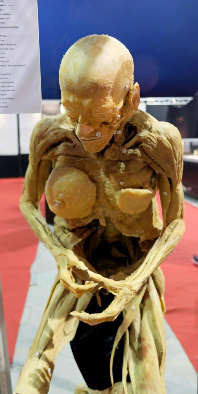Einblick in die Anatomie des Menschen | Göttingen