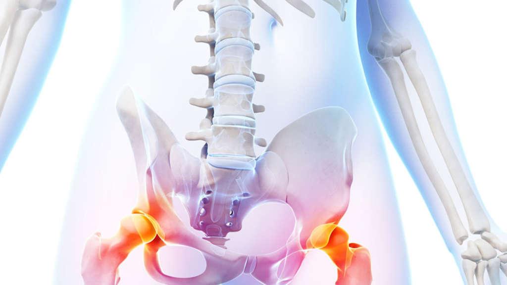 Arthrose des Hüftgelenks – Die Hüftgelenkprothese | Kassel