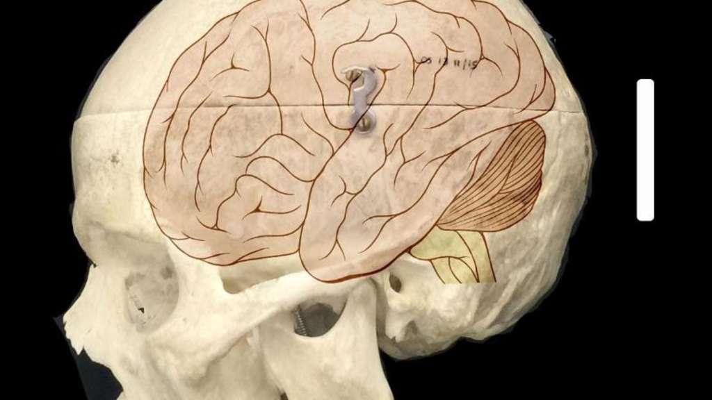 Forscher Entschlsseln Ursache Von Menschlichem Hirnwachstum Welt