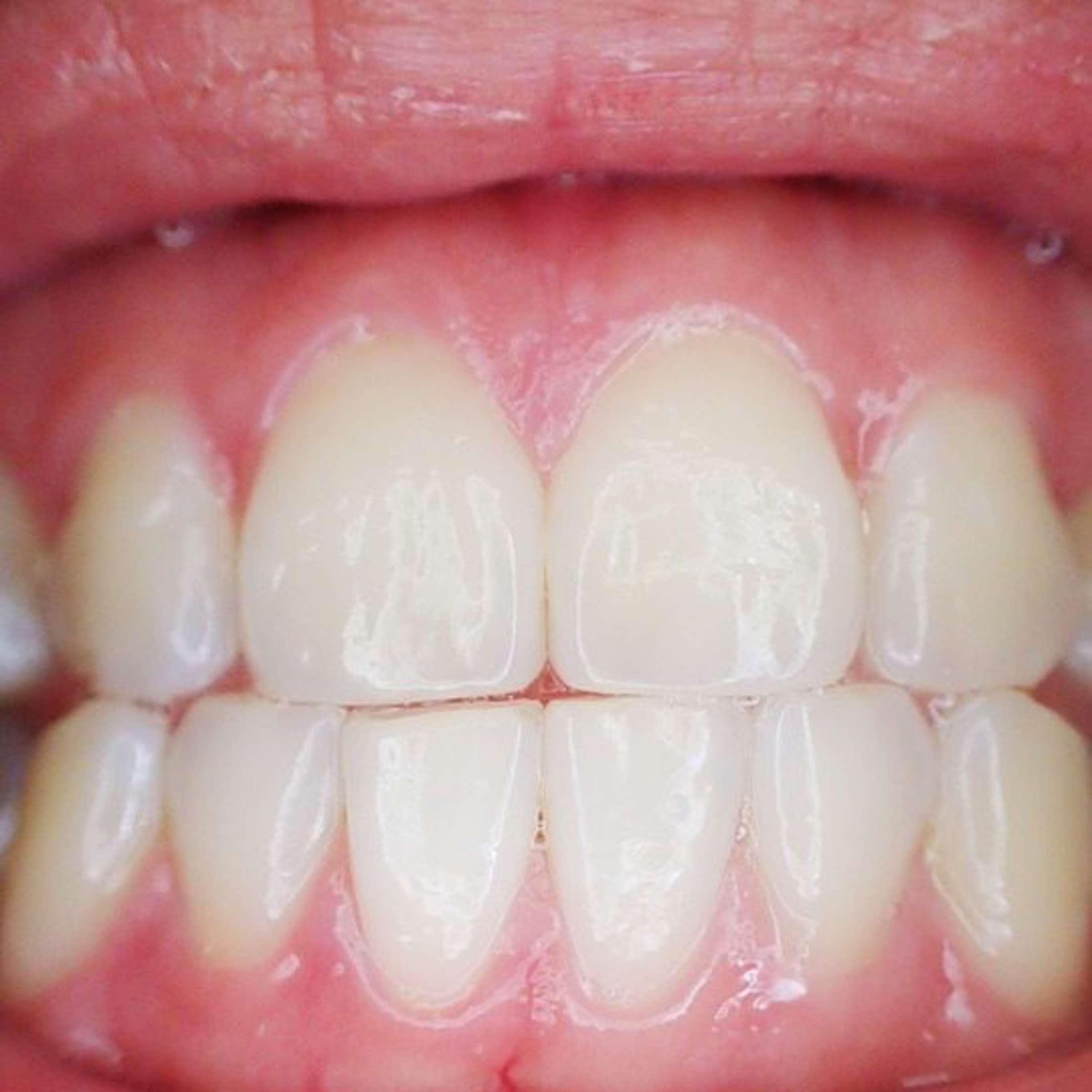Sich schneidezähne verschieben Zahnkorrektur bei